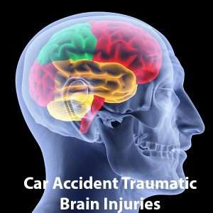 Traumatic Brain Injury Jaspon Armas