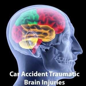 Traumatic Brain Injury Jaspon Armas