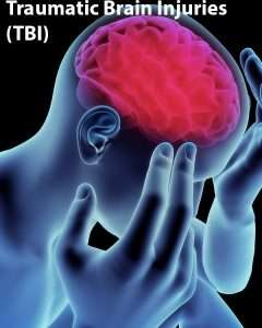 Traumatic Brain Injury (TBI) Orlando Florida Car Accident lawyer