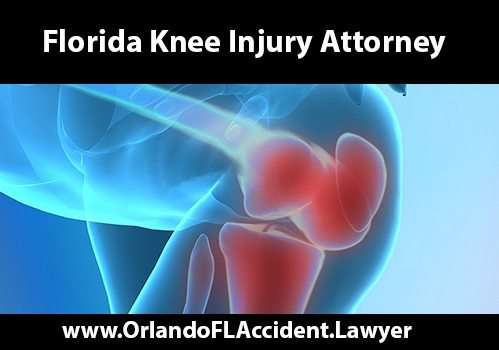 Florida Knee Accident Attorney