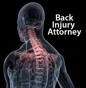 Orlando Back Injury Attorney